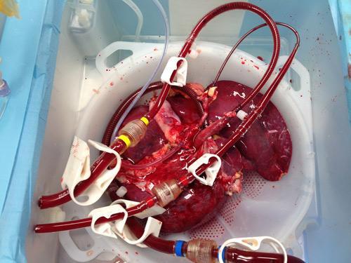 Liver_transplant